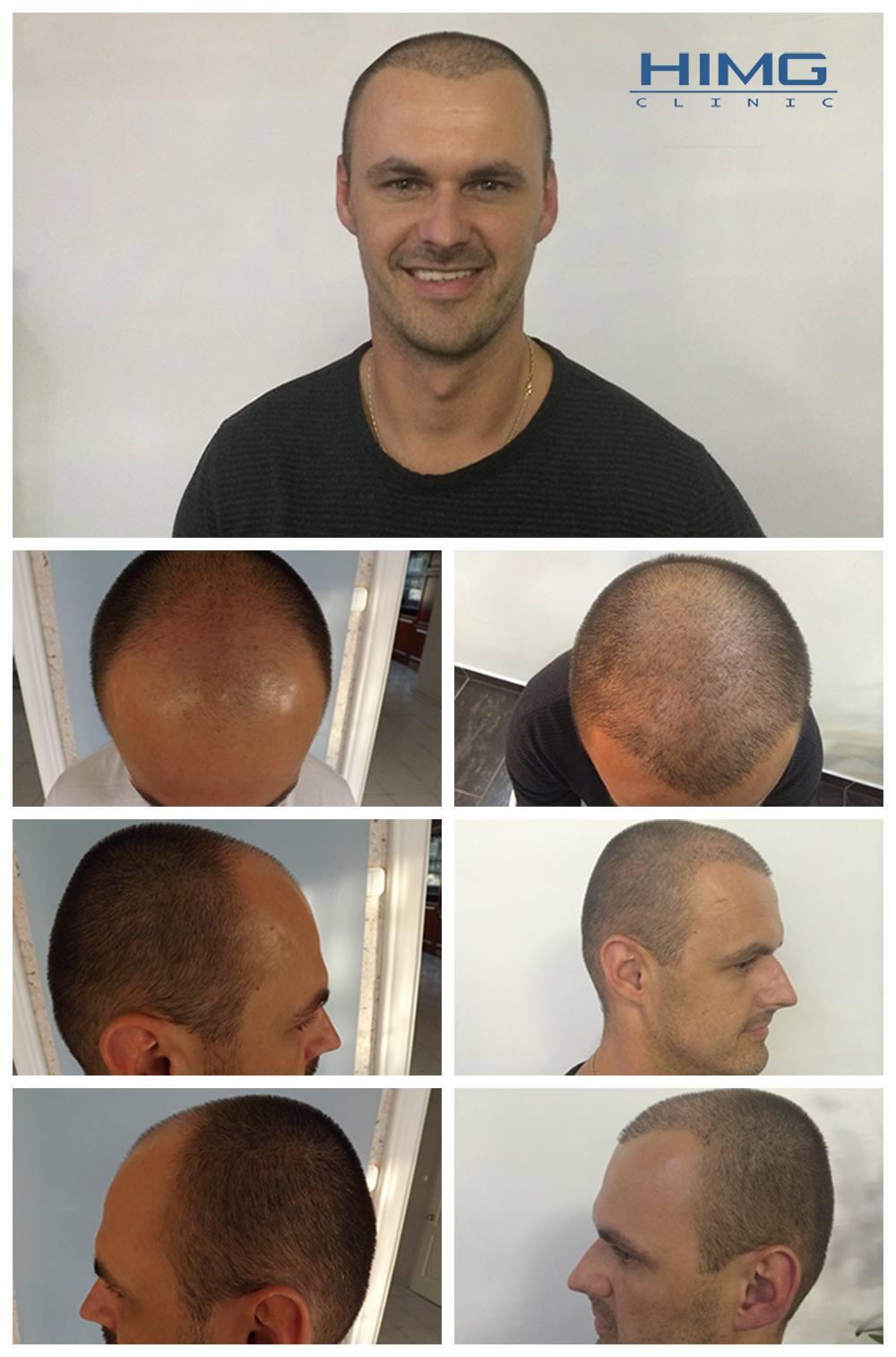 Hajbeültetés előtte-utána fotók - eredmények