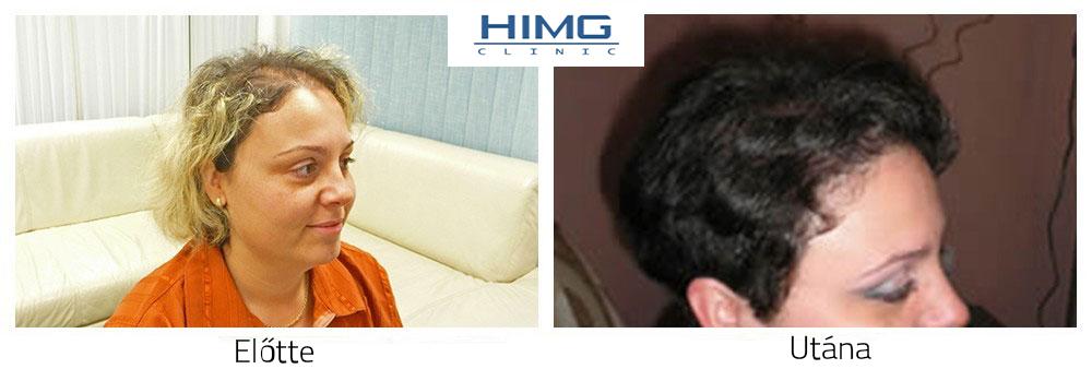 Hajbeültetés hajátültetés nőknek