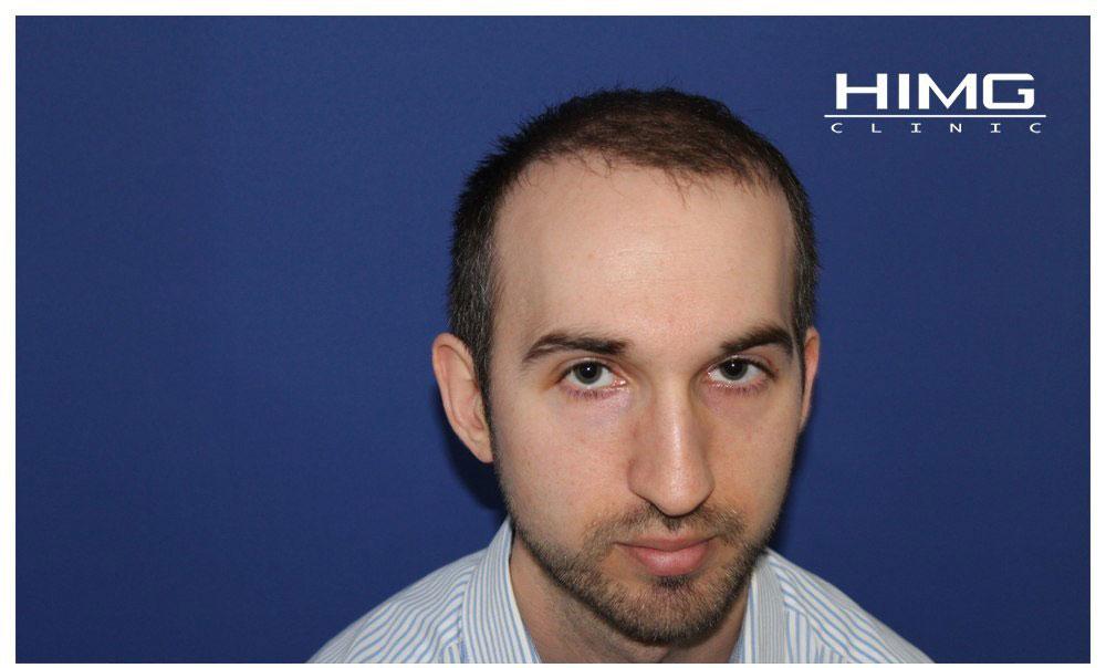 Hajbeültetés eredmények képek ,hajátültetés fotók