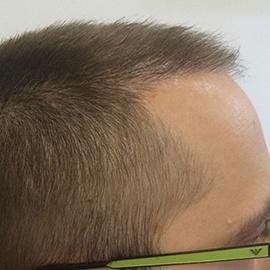 S.H.E. hajbeültetés módszer - közvetlen hajbeültetés után