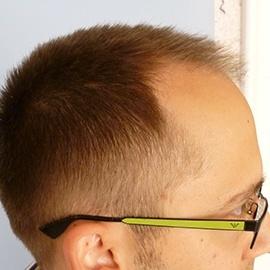 S.H.E. hajbeültetés módszer - hajbeültetés előtt