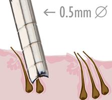 S.H.E. hajbeültetés lépései