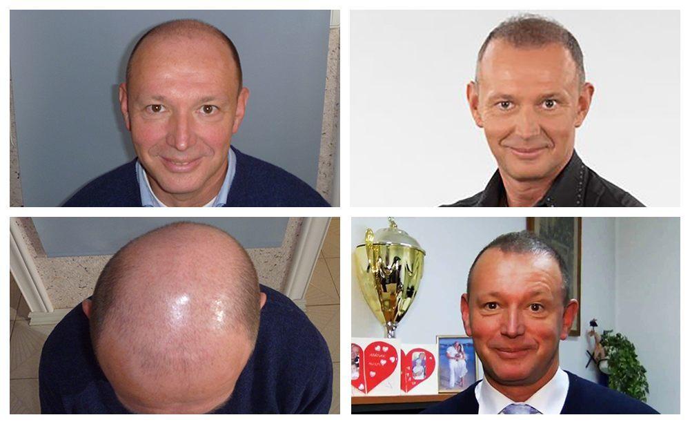 Győrfi Pál hajbeültetése