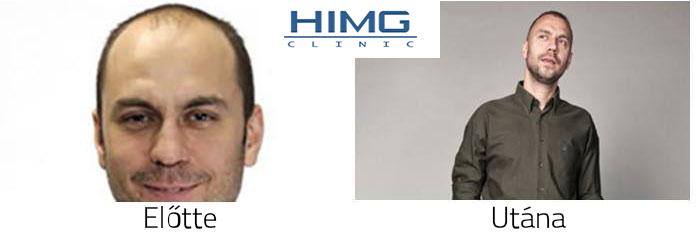 HIMG Klinika előtte-utána fotók - eredmények