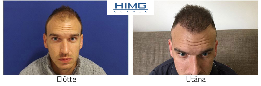 Hajbeültetés eredmények, hajátültetés fotók