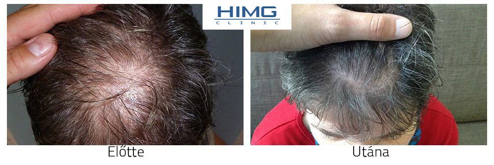 Hajbeültetés, hajátültetés képek