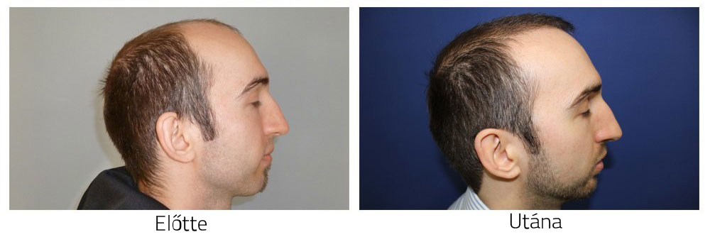 Hajátültetés előtte-utána fotók - eredmények