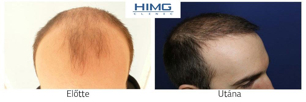 Hajklinika előtte-utána fotók - eredmények