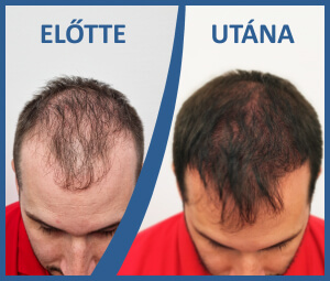 The innovative S.H.E. method of HIMG Clinic