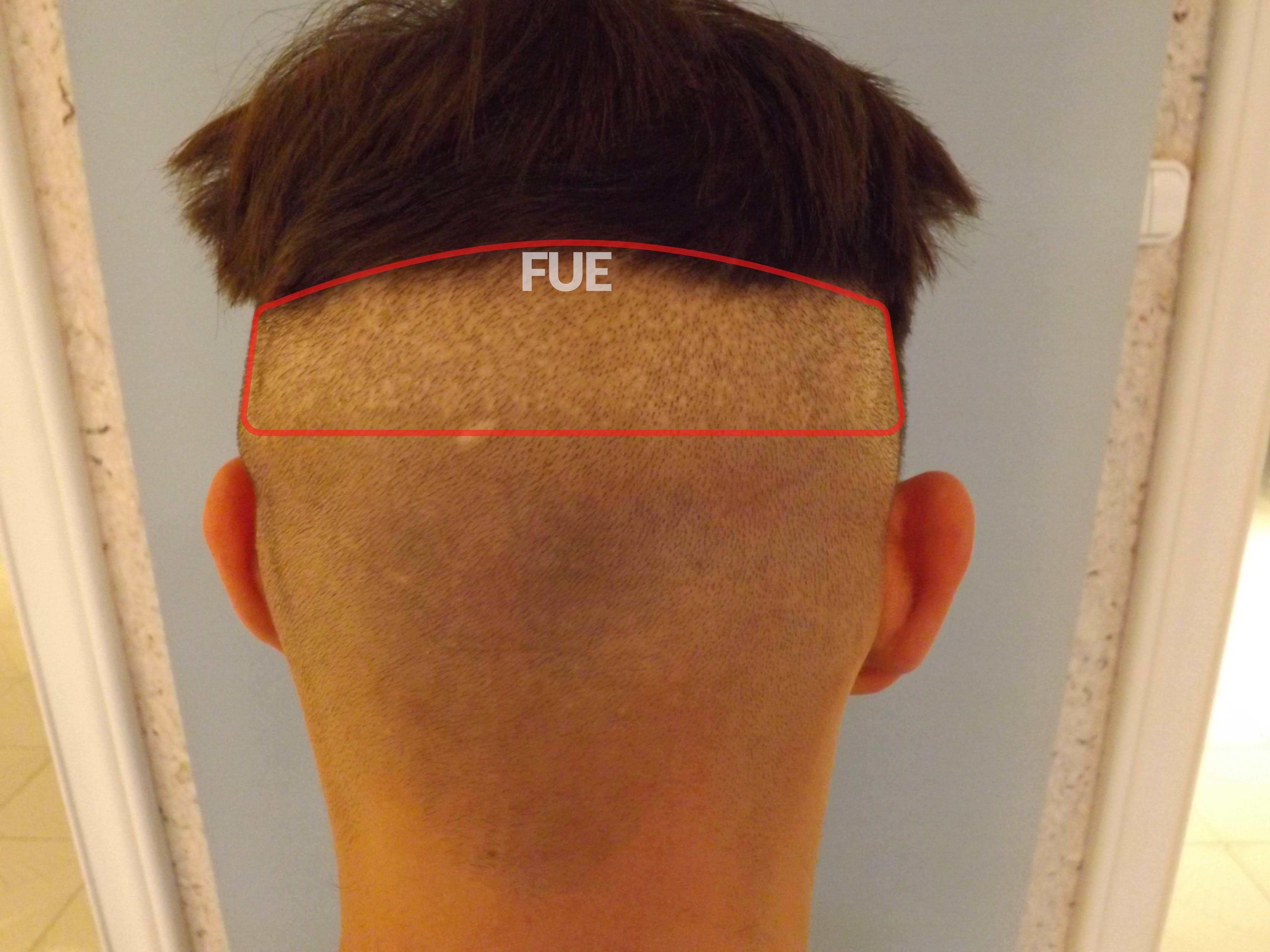 F.U.E. VS. S.H.E. módszerek összehasonlítása